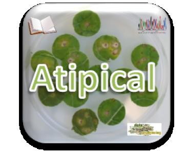 Lancement du projet ATIPICAL